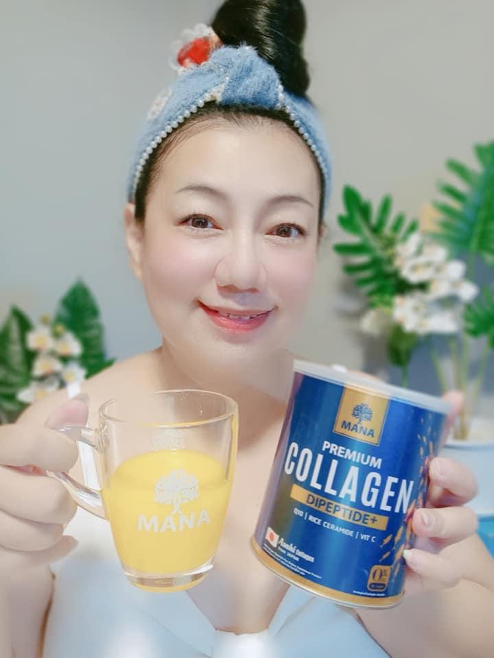Collagen 2